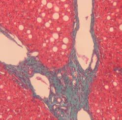 Coloración especial (tricrómico de Masson) que permite  apreciar la existencia de fibrosis establecida en una hepatitis crónica