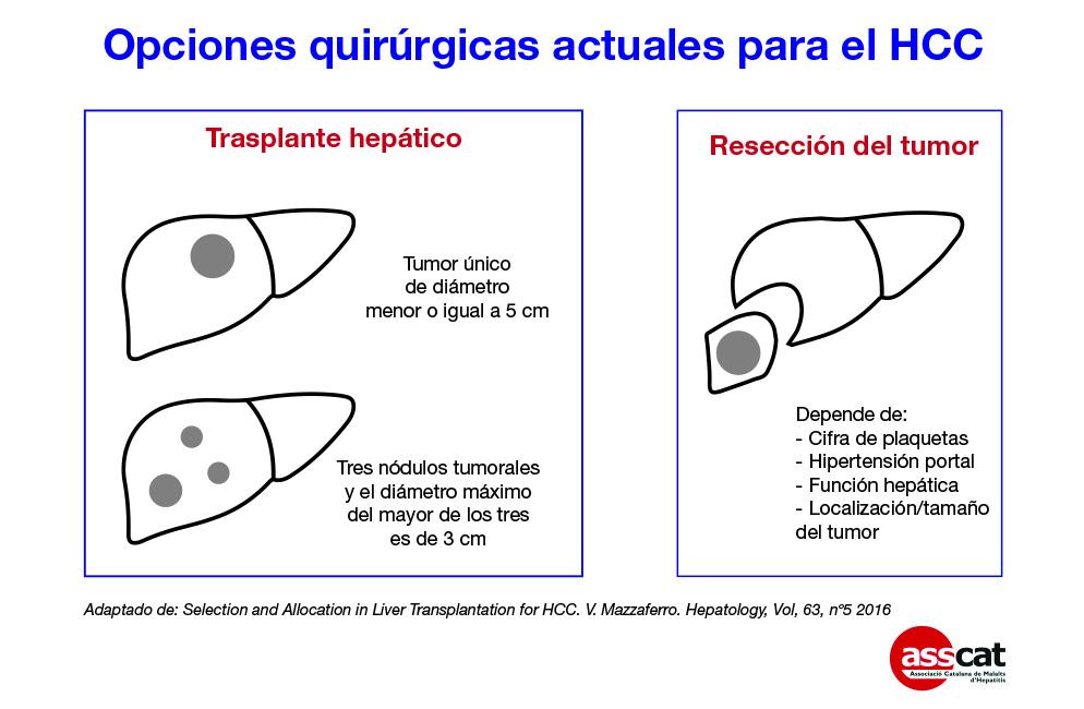 opciones-quirurgicas
