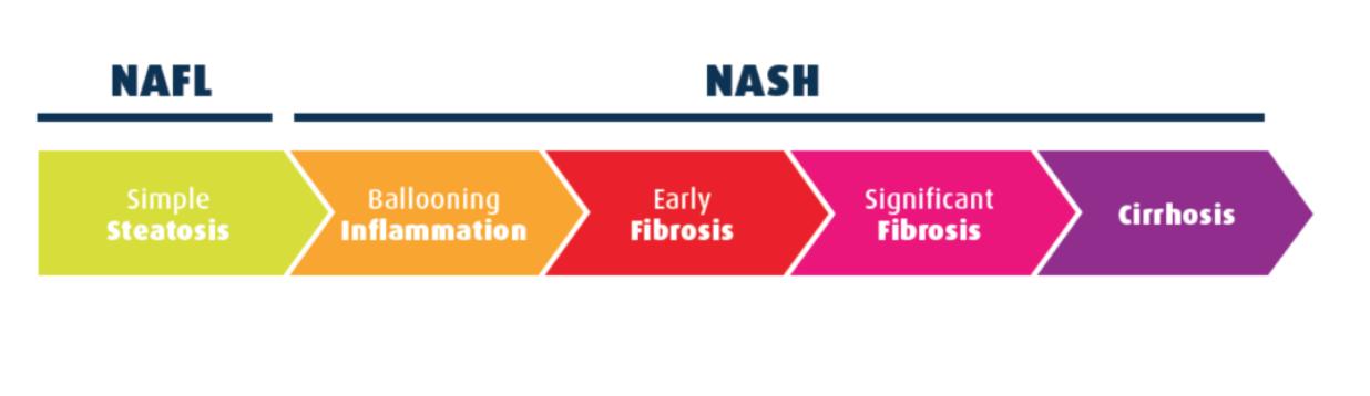 Cuáles son las principales enfermedades del hígado? | ASSCAT