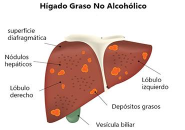 Implicaciones potenciales de COVID-19 en la enfermedad del hígado graso no alcohólico