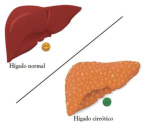 ¿Qué le hace la cirrosis del hígado a su cuerpo?