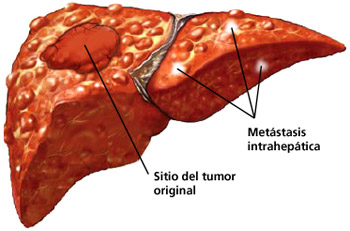 """""""El càncer hepàtic és més prevalent en persones que tenen fetge gras"""""""