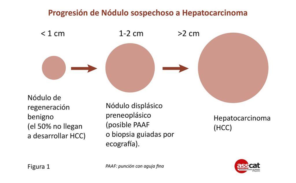 pautas de diagnóstico de hepatoma para diabetes