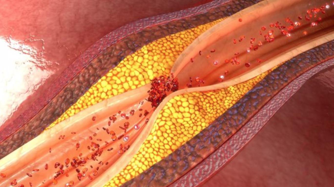Descobreixen el paper del colesterol en el desenvolupament del carcinoma hepatocel·lular