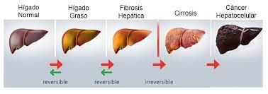 Investigadors subratllen la importància de la medicina personalitzada en pacients amb malaltia hepàtica metabòlica