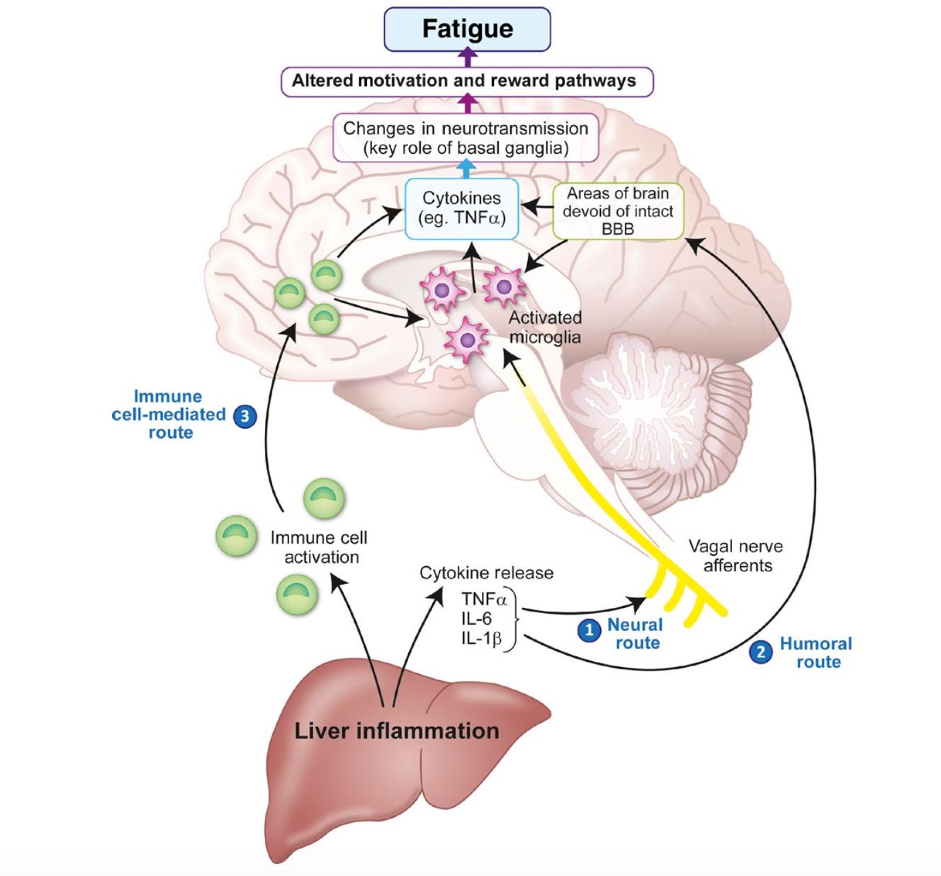 La fatiga com a símptoma de malaltia hepàtica crònica: nous coneixements i enfocaments terapèutics