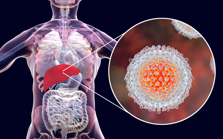 Controles clínicos y pruebas recomendadas en los pacientes con hepatitis C que han tenido respuesta virológica sostenida (RVS) tras el tratamiento anti-VHC