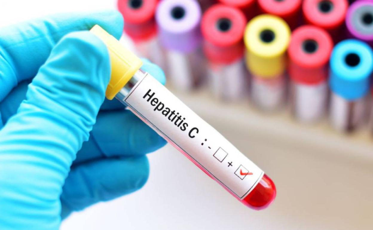 """Dos expertos de Galicia y Castilla y León, unidos contra la Hepatitis C: """"El diagnóstico temprano es fundamental"""""""