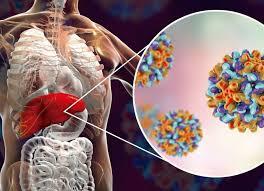 Els objectius marcats el 2016 en la 69ª Assemblea Mundial de la Salut per assolir l'eliminació de l'hepatitis viral el 2030, s'haurien de simplificar i adaptar a la realitat actual