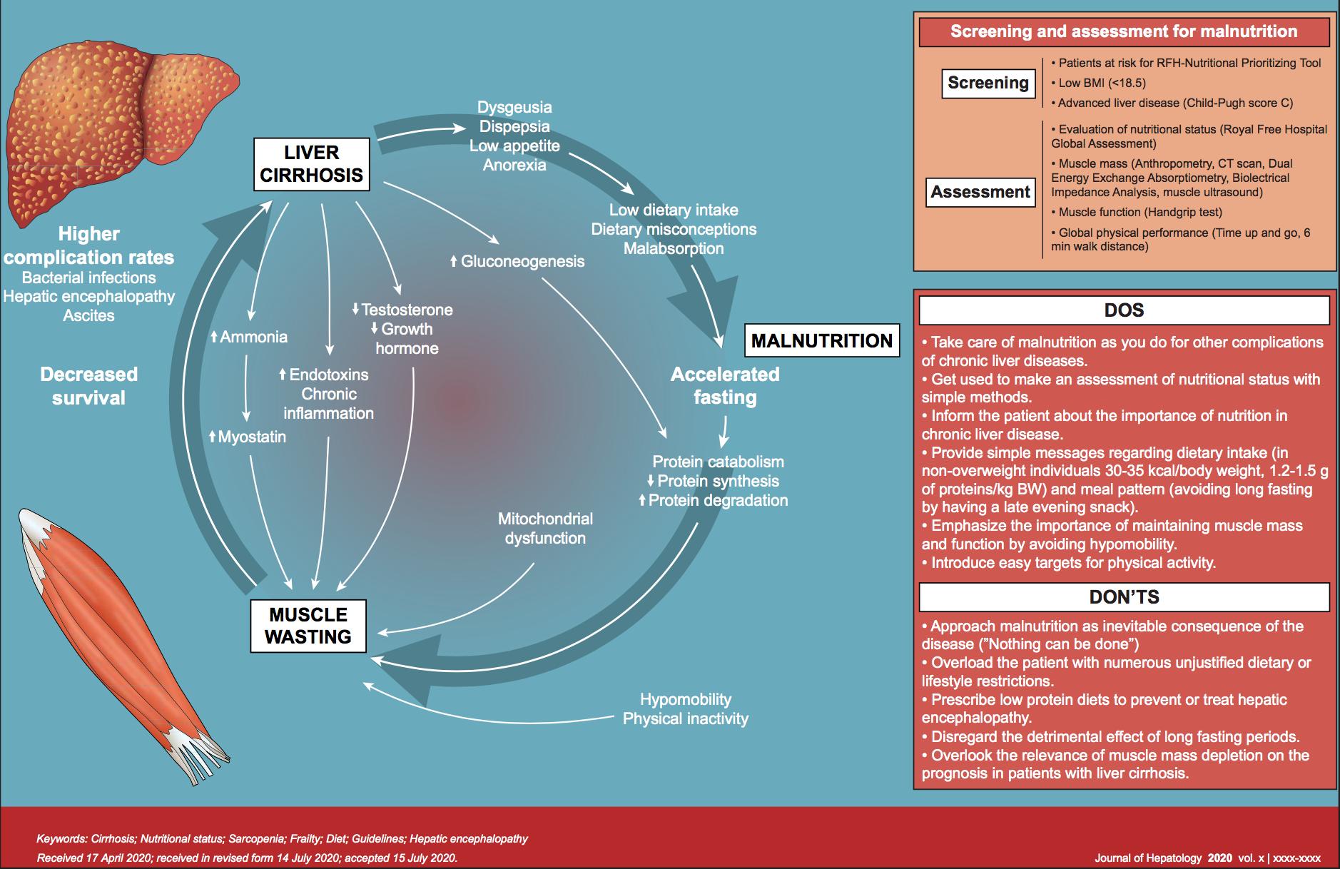 Nutrición en los pacientes con cirrosis: lo que se debe y lo que no se debe hacer