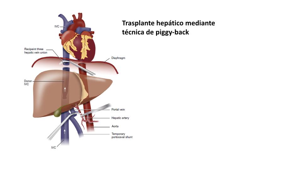 ¿Es la hipertensión una contraindicación para la donación de órganos después de la muerte?