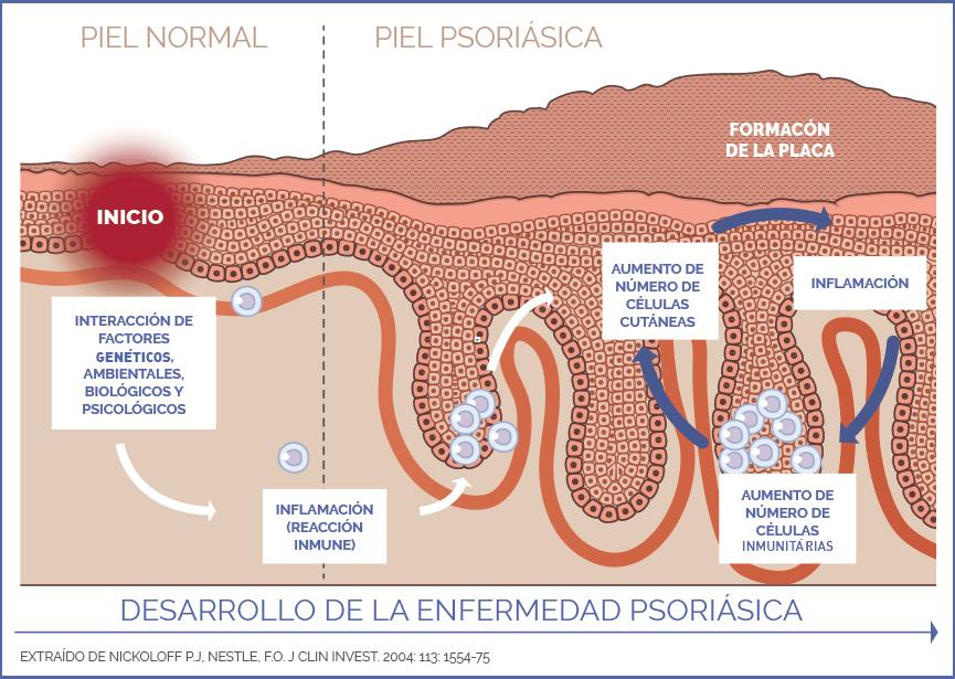 ¿Es la psoriasis una de las manifestaciones extrahepáticas del VHC?