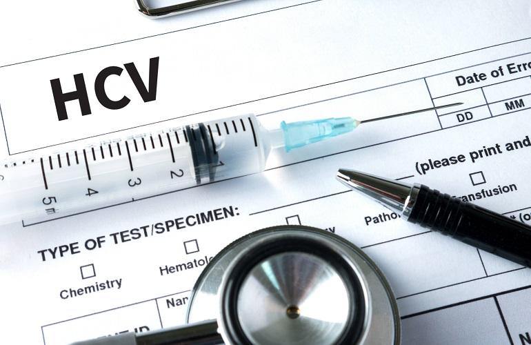 """""""La eliminación del VHC requiere de planes globales de screening"""""""